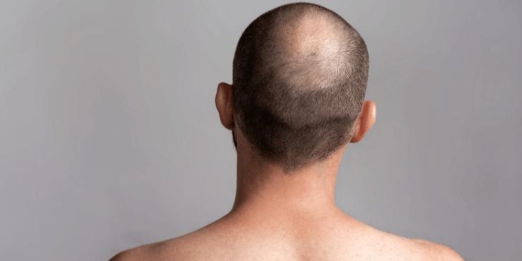 Haarausfall Arten