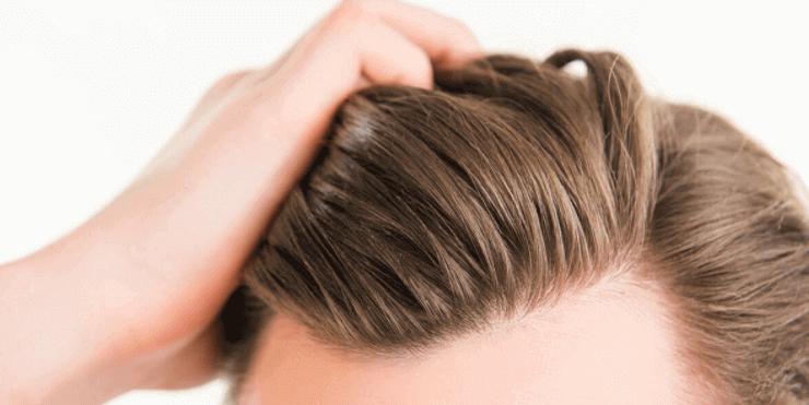 Haarausfall Behandlungsmethoden