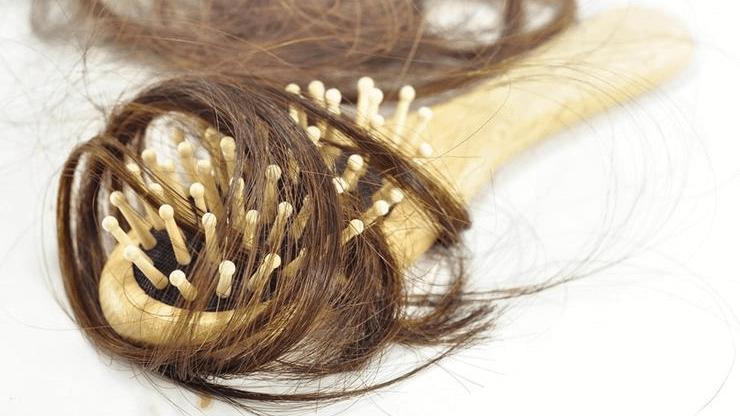 Haarausfall Ursache Diagnose Behandlung