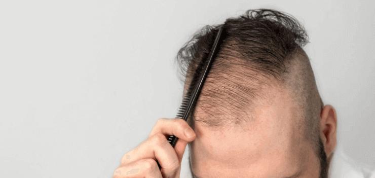 Haarausfall Ursache