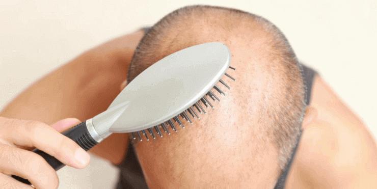 Haarausfall Ursachen Gründe